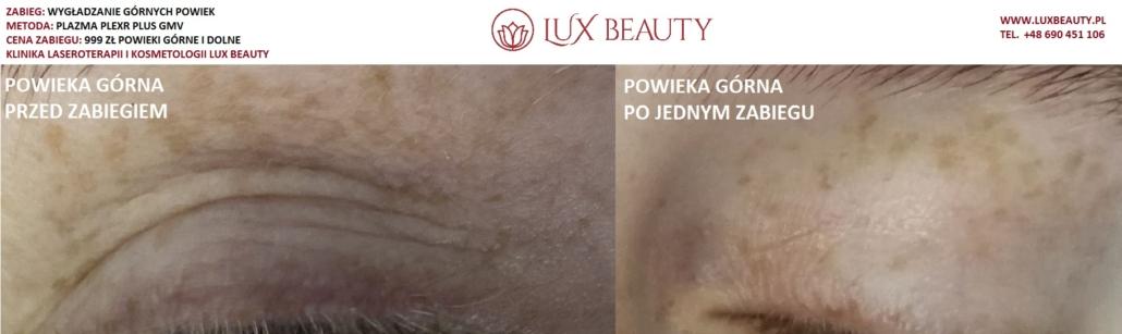 Plexr Plus Lux Beauty